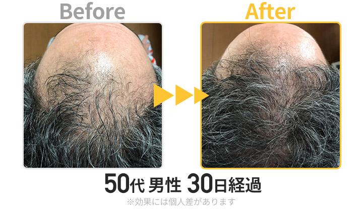 50代男性30日経過