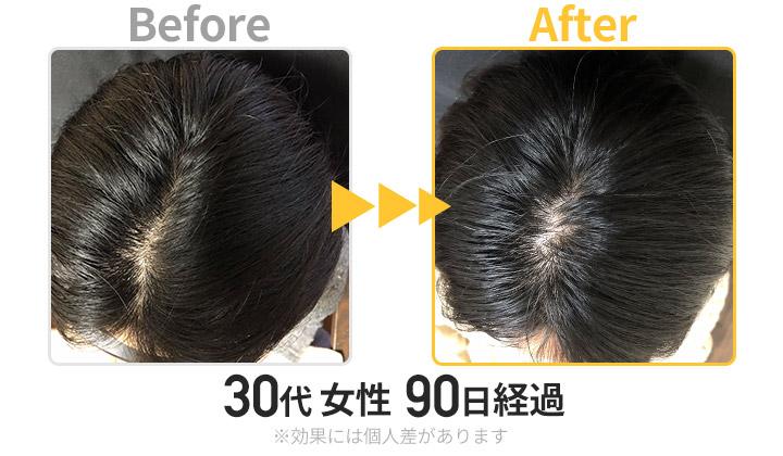 30代女性3ヶ月経過(頭頂部)