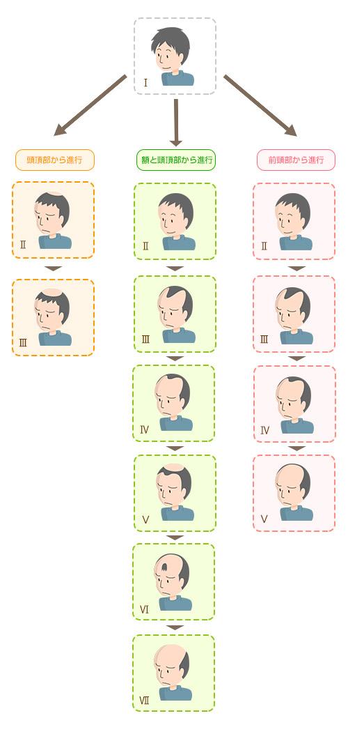男性のパターン