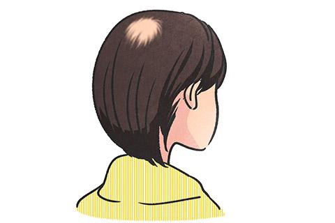 細菌(円形、多発)脱毛症